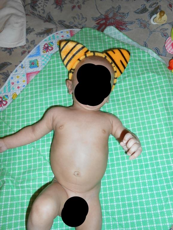 Живот у новорожденных при рахите