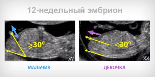 24 недели беременности ощущения, развитие плода