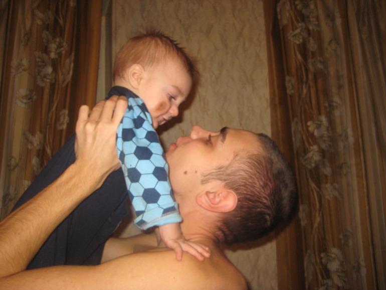 Невус у ребёнка: причины, лечение