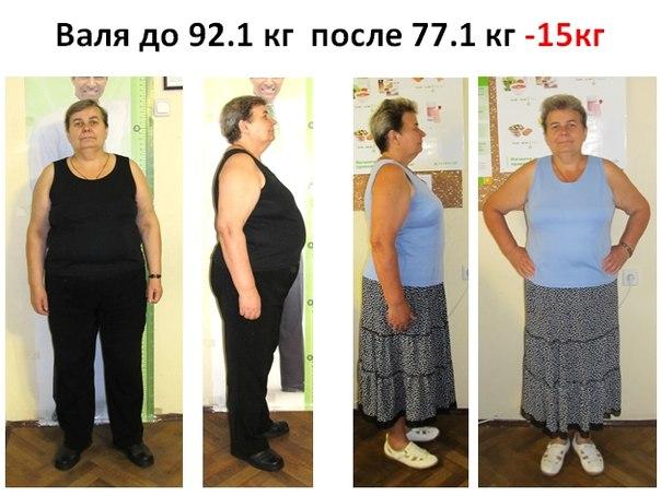 Как ребенку похудеть за неделю на 10 кг