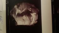 Фото узи на 35 неделе беременности