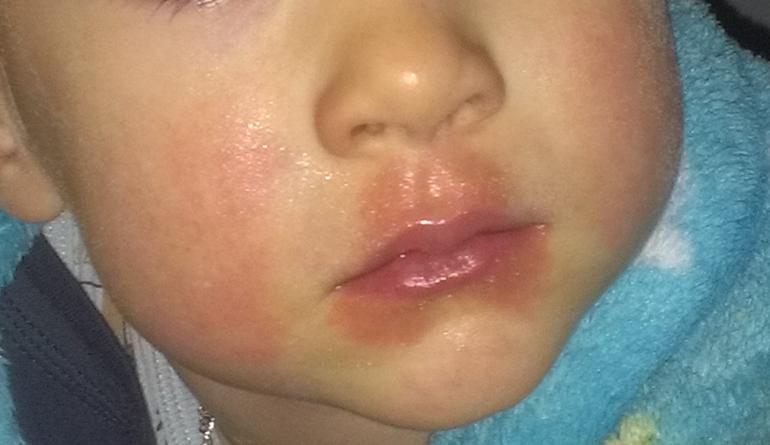 Насколько точны аллергопробы?