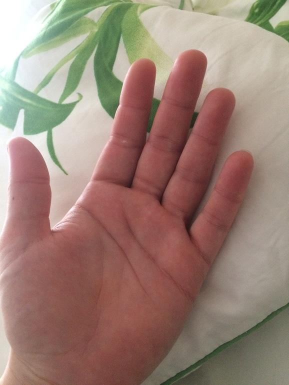 Беременна и отекают кисти рук в руки