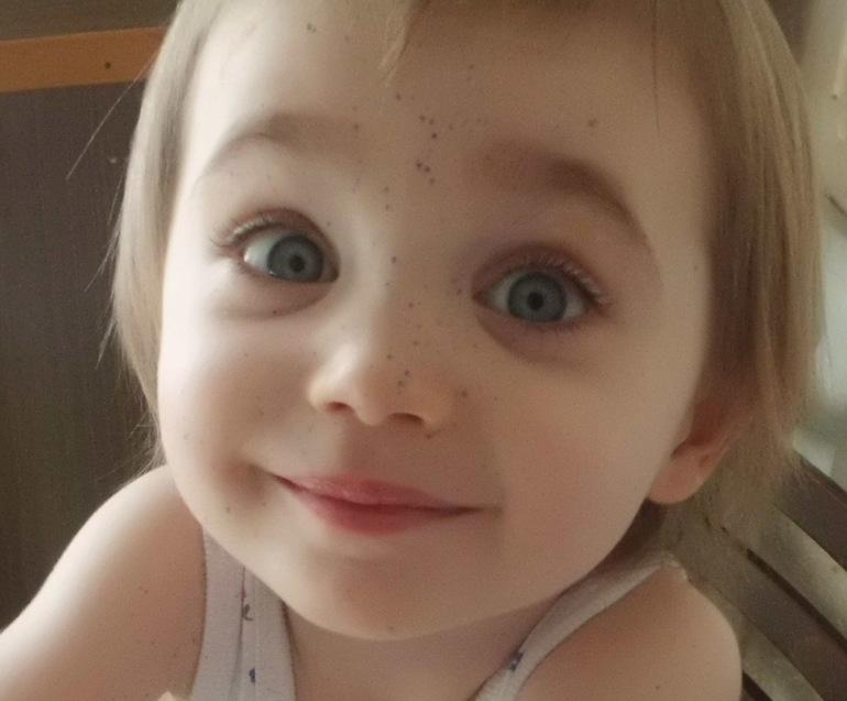 У ребенка 3 года плохо растут волосы