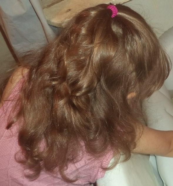 от чего выпадают волосы