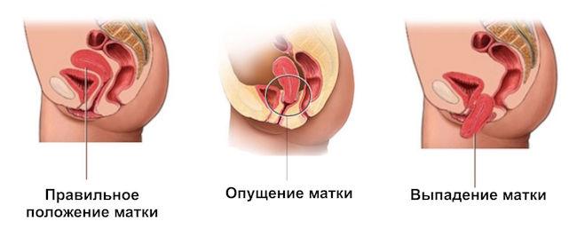 opushenie-stenki-vlagalisha-2-3-stepen