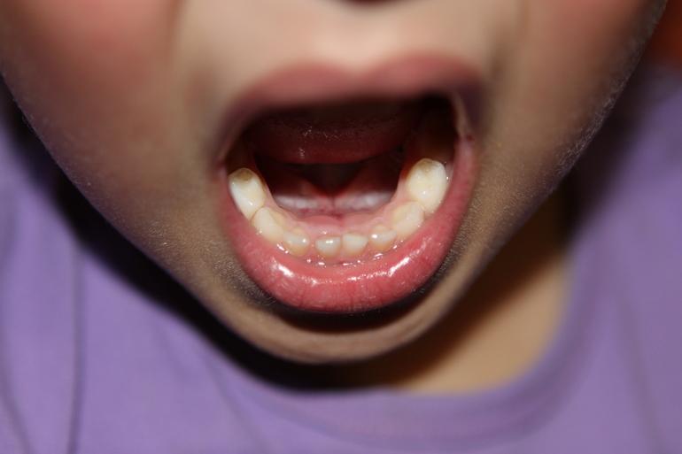 Резец зуба шатается