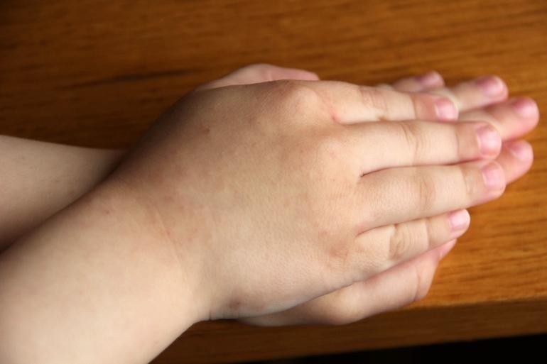 От чего чешутся руки у беременных 3