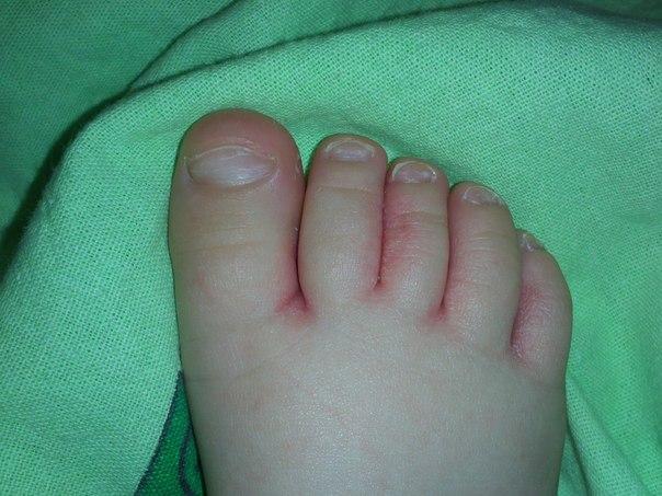 покраснение между ног с прищами у мальчика фото