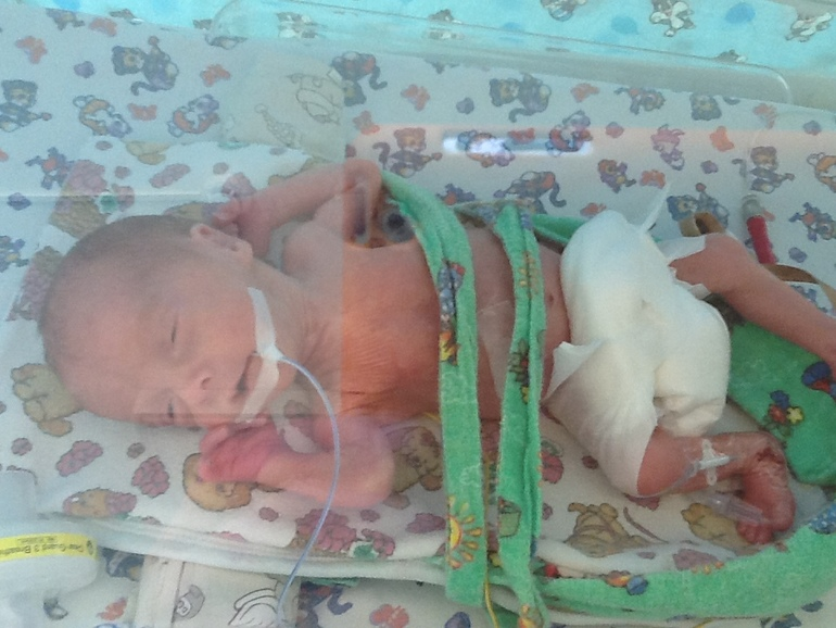 Ребёнок родившейся в 30 недель беременности