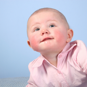 Диатез и его виды: исключаем аллергены и снимаем зуд