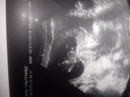 Фото узи на 11 неделе беременности