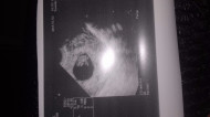 Фото УЗИ на 6 неделе беременности