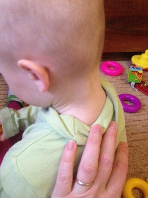 увеличенные лимфоузлы в грудной клетке у ребенка