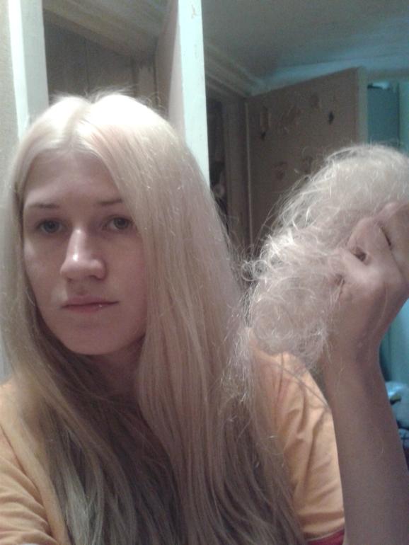 После похудения выпали волосы