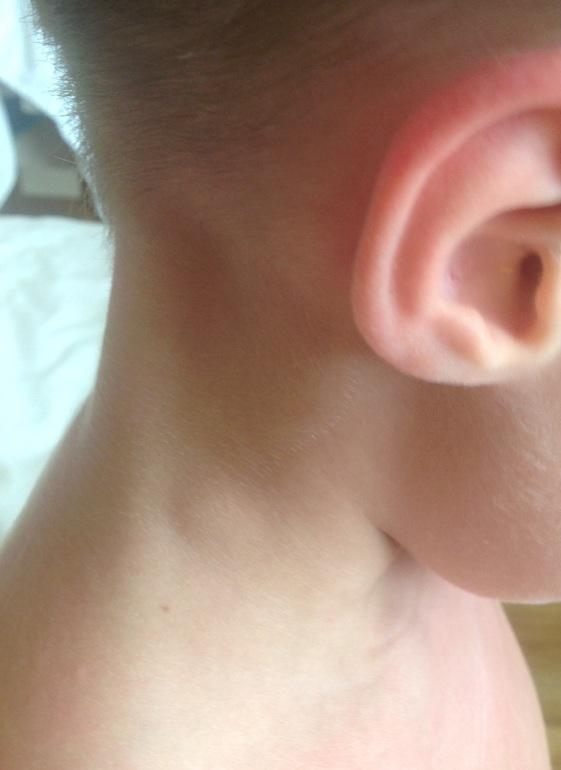 На шее болит у ребенка 56