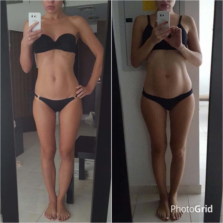 Восстановление гормонального фона после родов и похудение